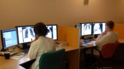 El cáncer de pulmón es la causa principal de muerte entre hombres y muj...