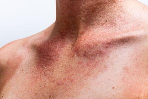 La piel se puede hiperpigmentar o tener una decoloración esto es...