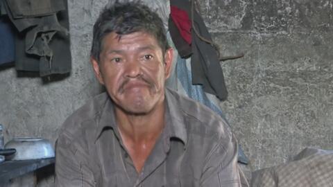 Hombre sufre las consecuencias de una paliza que recibió cuando visitaba...