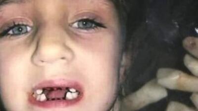 Dentista de Florida le sacó 7 dientes a Bri'el sin necesidad.