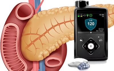 El páncreas de las personas con diabetes tipo 1 produce poca o ni...