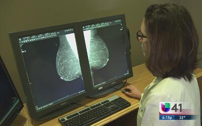 La importancia del examen de mamografía