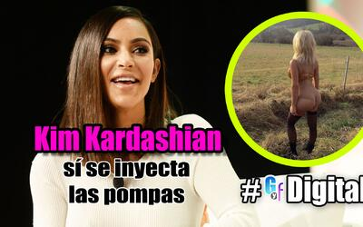 GYF digital: Kim Kardashian confesó que se inyecta las pompas
