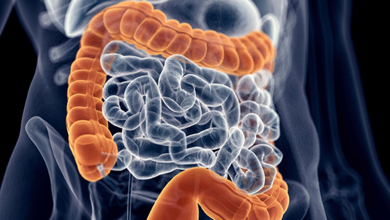 Consulta con Dr. Juan: ¿cómo desintoxicar el colon?
