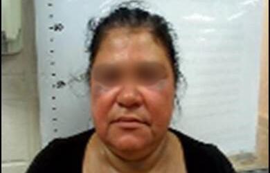 Inmigrante hondureña golpeada por coyotes
