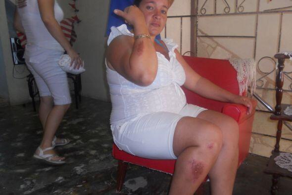Una Dama de Blanco muestra las lesiones provocadas mientras la arrestaba...