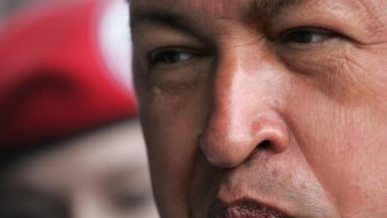 Hugo Chávez podría vtener cáncer de colon, según un grupo de especialist...