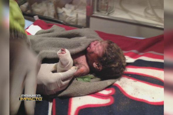 Rescataron a un bebé que había sido enterrado y abandonado en un campo d...