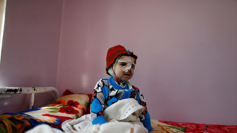 Yemen: Un niño desnutrido es tratado en un centro sanitario en Sa...