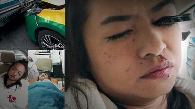 Mujer casi pierde el ojo por maquillarse en el auto