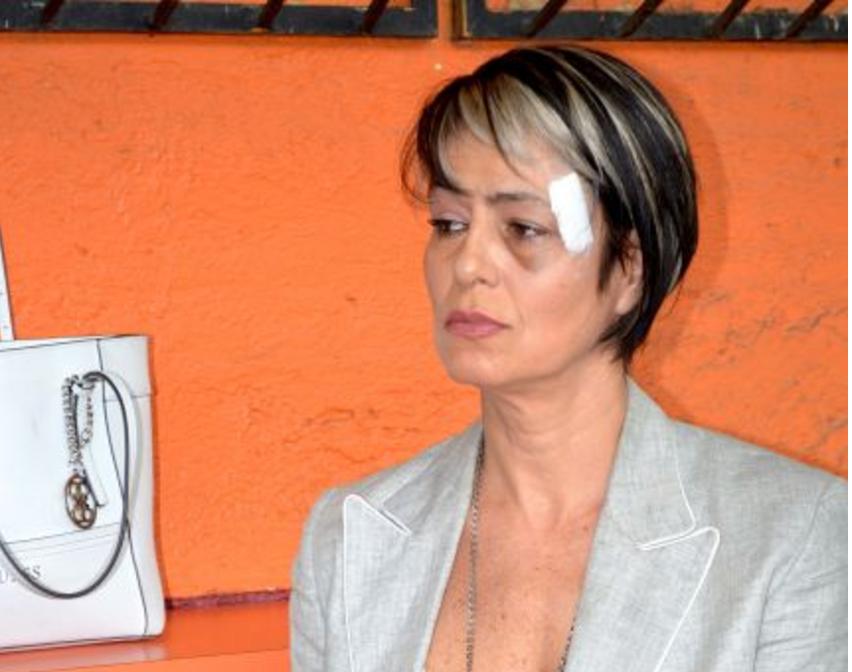 La actriz América Gabriel fue golpeada por un hombre en mayo de 2016, de...