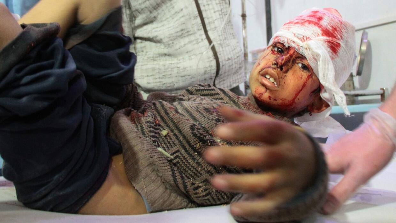Un niño sirio herido es tratado luego de un ataque aéreo e...