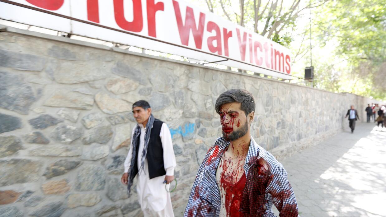 Un herido en el atentado en Kabul camina ensangrentado frente a un hospi...