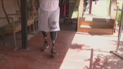 La historia de un guatemalteco que recuperó sus prótesis gracias a la bondad y la solidaridad