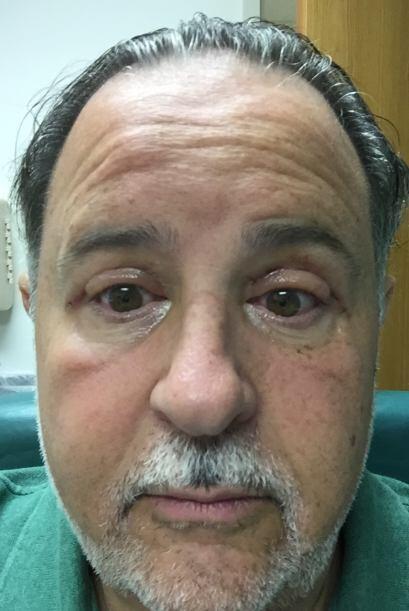 A los siete días de haberse operado, Raúl estuvo listo para retirarse lo...