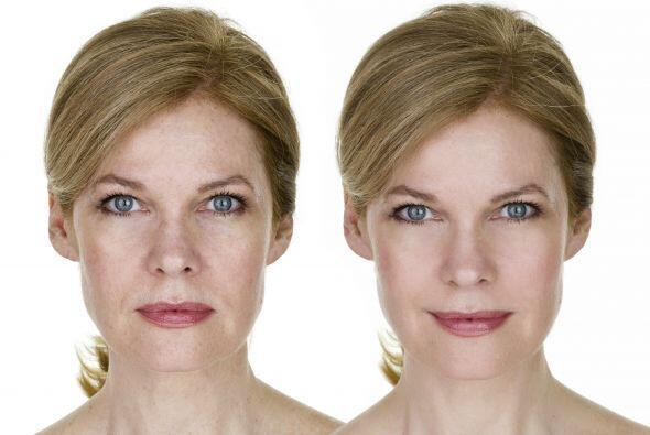 Ácido retinoico. Es una forma activa de vitamina A, que sería aliado par...
