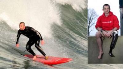 Rick Bennett, el surfista de una sola pierna.