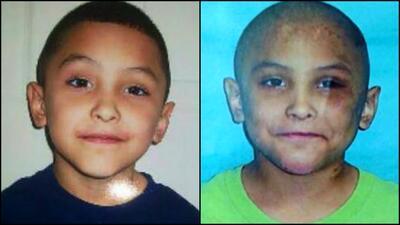 Dos rostros del niño Gabriel Fernández. A la derecha con c...