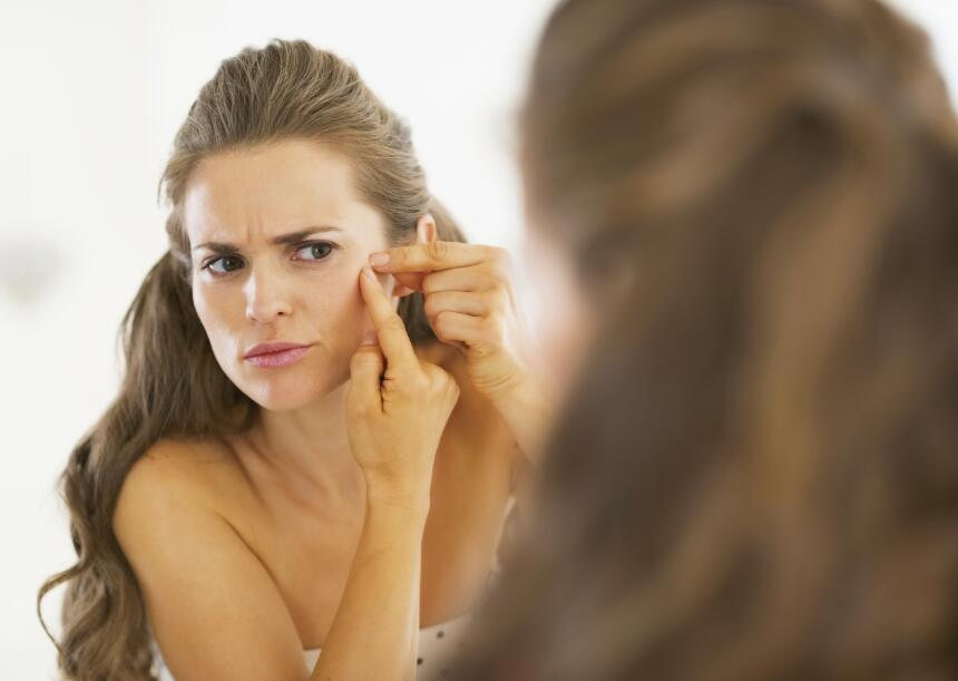 mujer con acne
