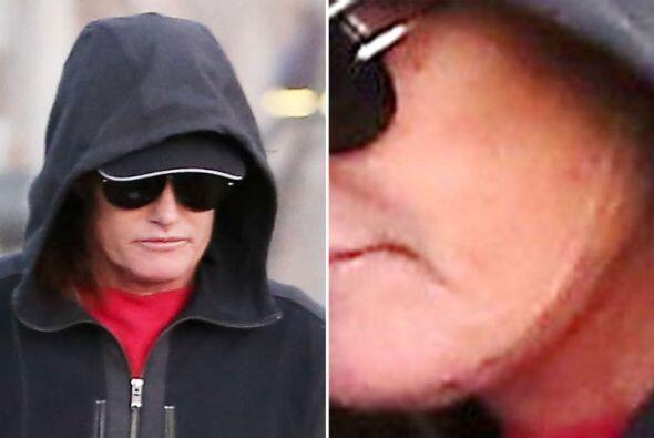 Hace algunas semanas se hizo varias cirugías en el rostro.