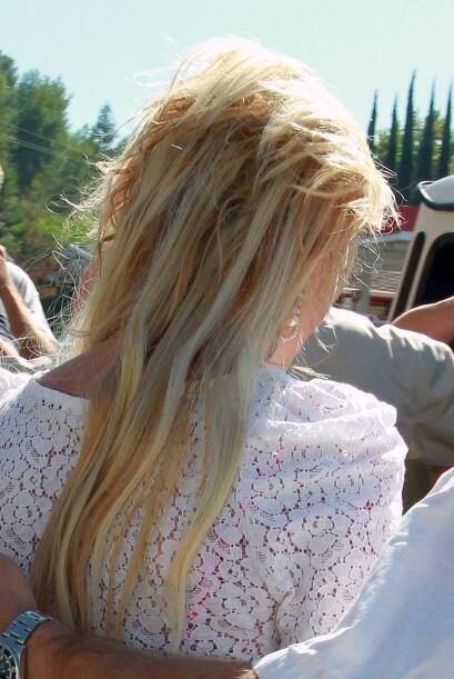 En realidad es poco y muy feo el pelo que esta famosa tiene en la cabeza...