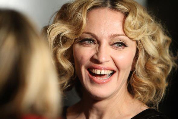 Otra de las cosas que llaman la atención en el rostro de Madonna son sus...