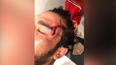 Atlas presume en redes sociales la lesión de Vigón y le llueven los comentarios