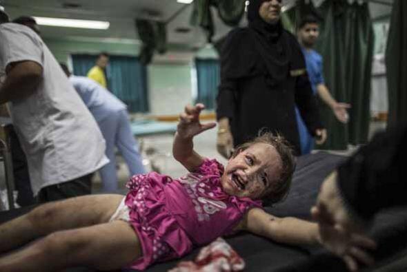 El psiquiatra palestino Abu Jamei dice que sobre todo los niños quedan t...