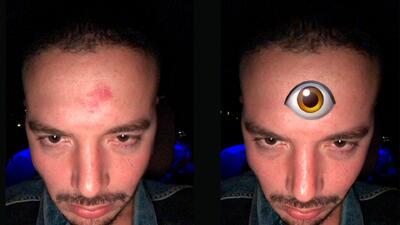 """A J Balvin le está """"saliendo el tercer ojo de Bad Bunny"""" y así lo mostró a sus fans"""