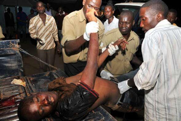 Los heridos fueron trasladados al principal hospital de Kampala, para se...