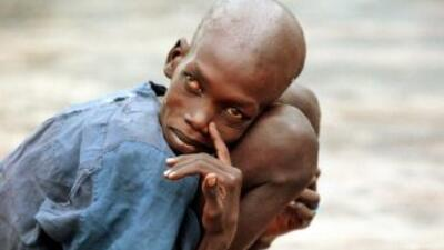 Hasta ahora 1,200 millones de personas tienen hambre en el mundo y la ma...
