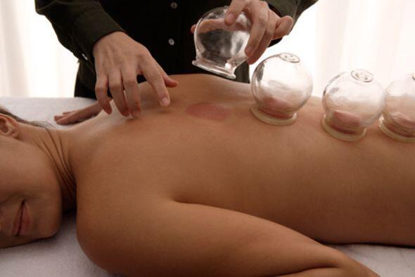 El procedimiento de la terapia de ventosas consta de unas copas y una ll...