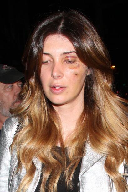 El abogado de Marquis argumenta que fue la bella mujer la que empezó el...