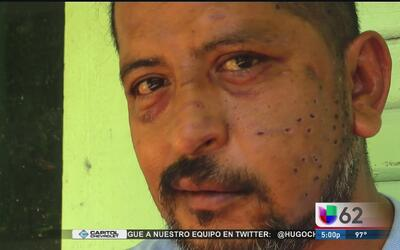 Recibió varios disparos de perdigones en el rostro mientras viajaba en s...