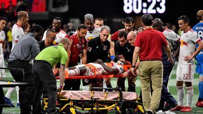 Lesión de Kemar Lawrence eclipsa triunfo de Red Bulls en Atlanta