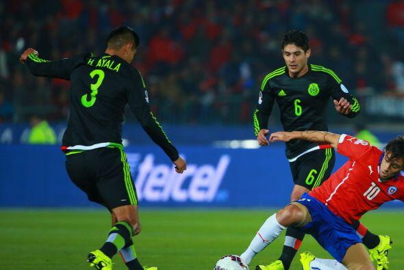 3.- Hugo Ayala- El defensor azteca tuvo un mal encuentro, le costó traba...