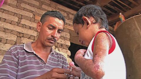La extraña enfermedad de un niño que lo va dejando sin piel y para la qu...