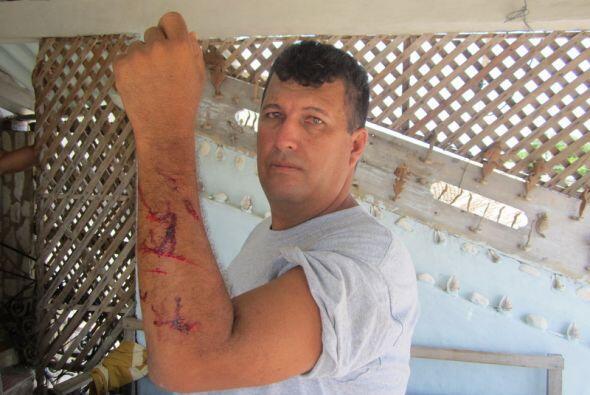 Opositor muestra heridas  provocadas durante su detención por fuerzas de...