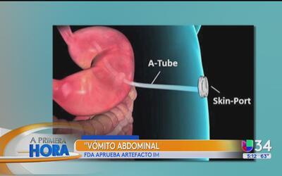 ¿Qué es el vómito abdominal y por qué fue aprobado para combatir la obes...