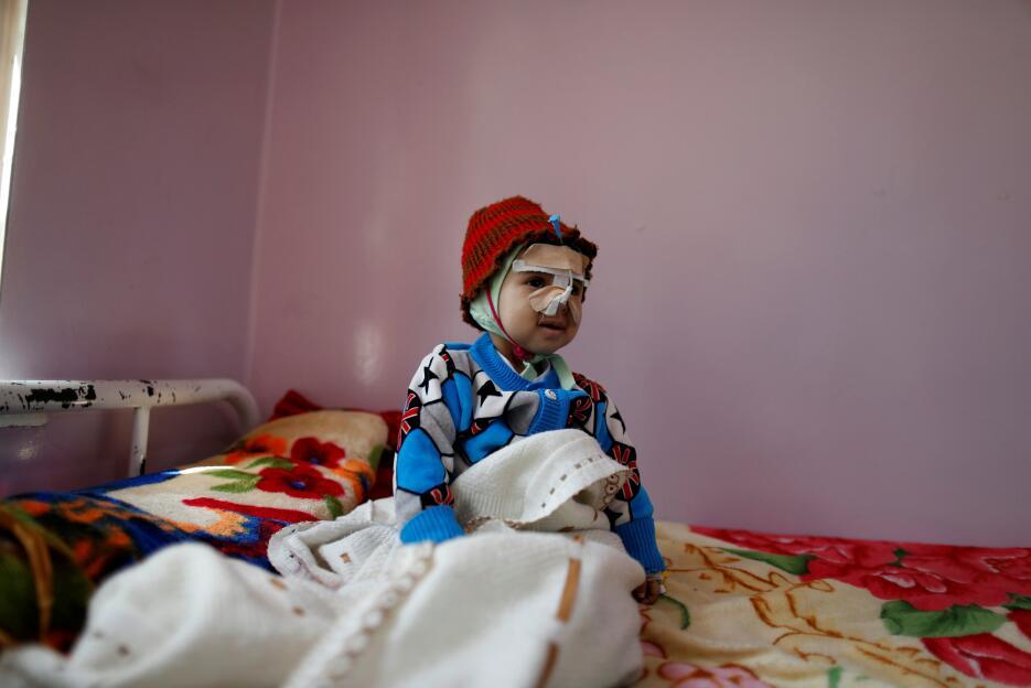 Yemen: Un niño desnutrido es tratado en un centro sanitario en Sanaa.
