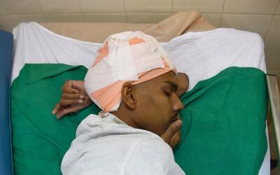 Santlal Pal se recupera de una operación maratónica a la q...