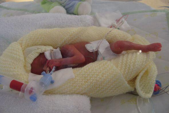 Emily entró en labor de parto con solo cinco meses de embarazo y dio a l...