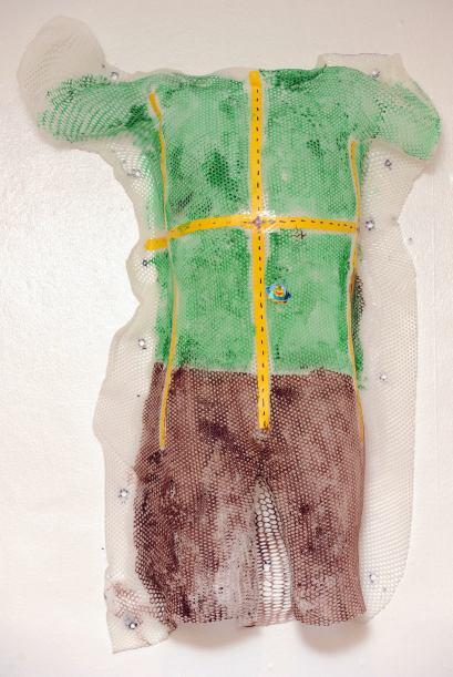 Los doctores de Callum decidieron hacerle un traje improvisado de Hulk.