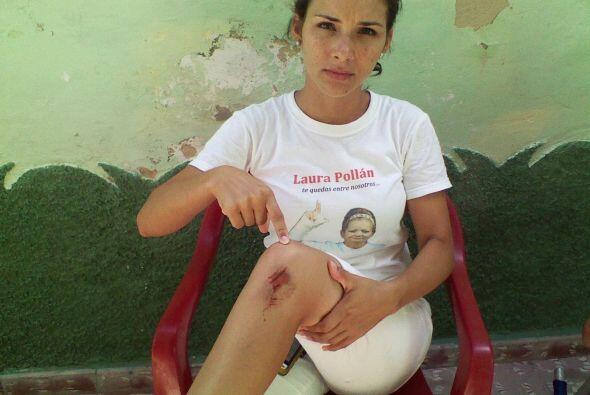 Una Dama de Blanco muestra las lesiones causadas por los agentes de segu...