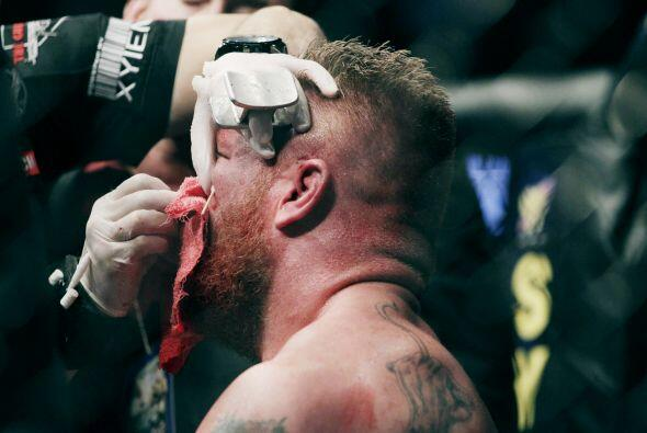 Después de que los doctores lo trataran, Brock apenas comenzaba a reacci...