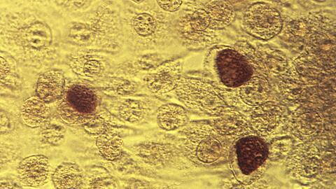 La bacteria que causa la gonorrea es muy astuta. Siempre que se usa un n...