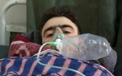 Un hombre es atentido de una afección respiratoria tras un bombar...