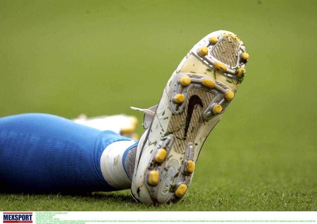Lesiones escalofriantes en el fútbol mundial 20070512-1381.jpg