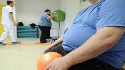 Estados Unidos tiene el mayor número de obesos en el mundo