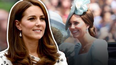 Kate Middleton tiene una cicatriz de 3 pulgadas en la cabeza (y sabe muy bien cómo ocultarla)